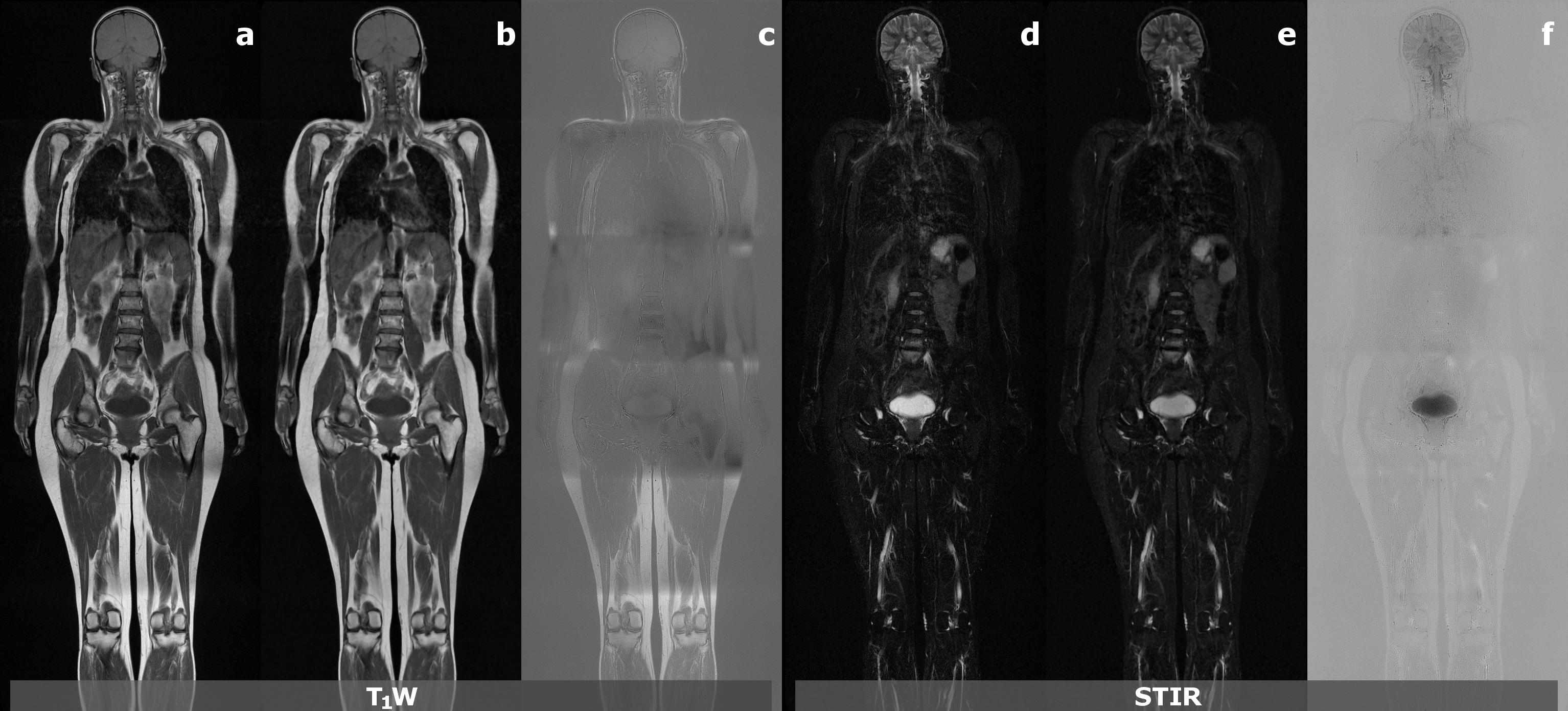 Image analysis for whole-body MR imaging | LUMC