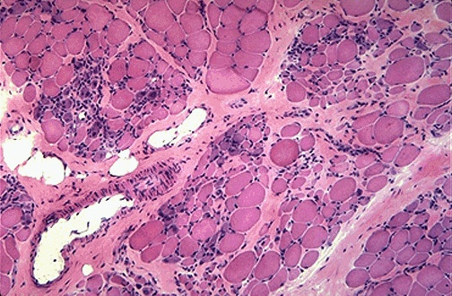 Biopsy DMD Muscle