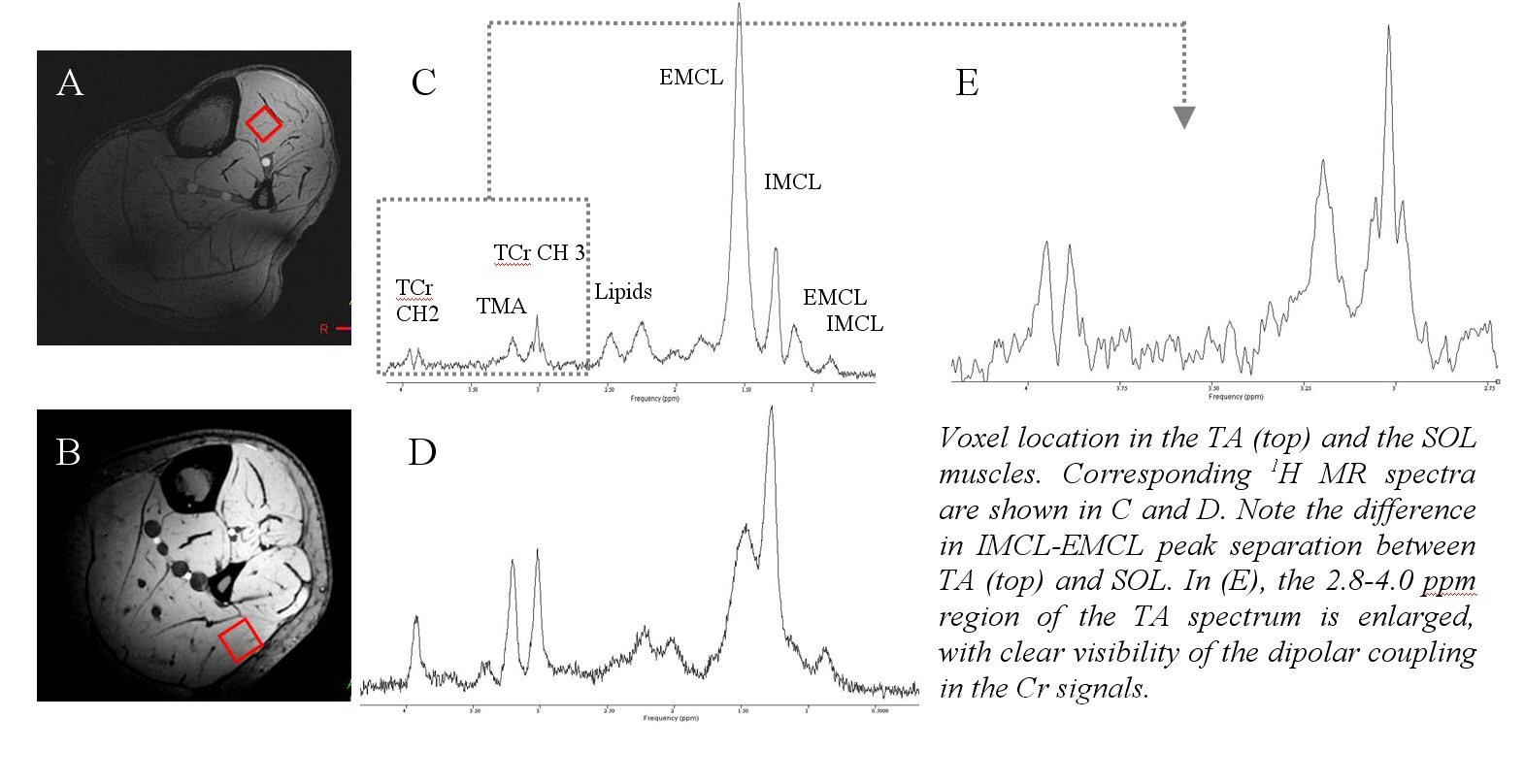 Muscle Spectroscopy 1