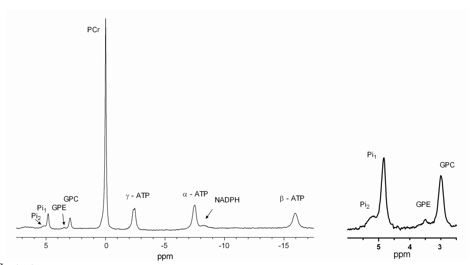Muscle Spectroscopy 2