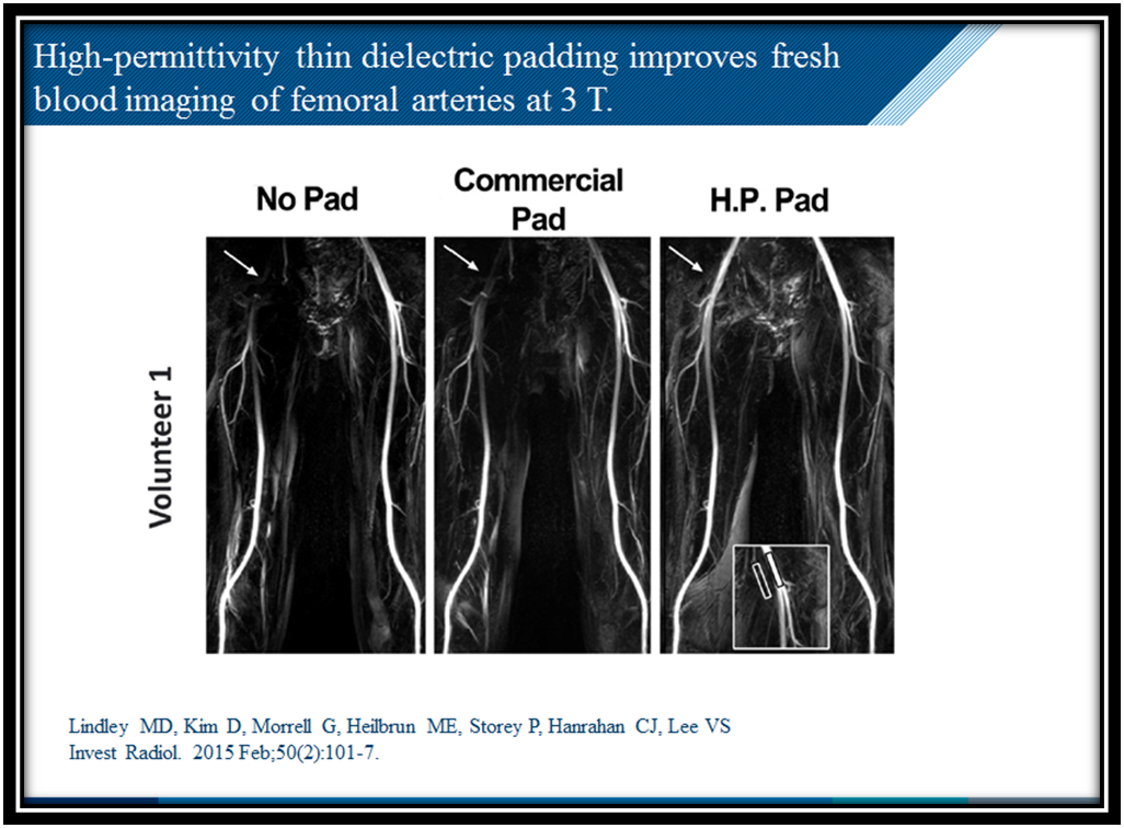 Blood imaging of femoral arteries using dielectric pads at 3T