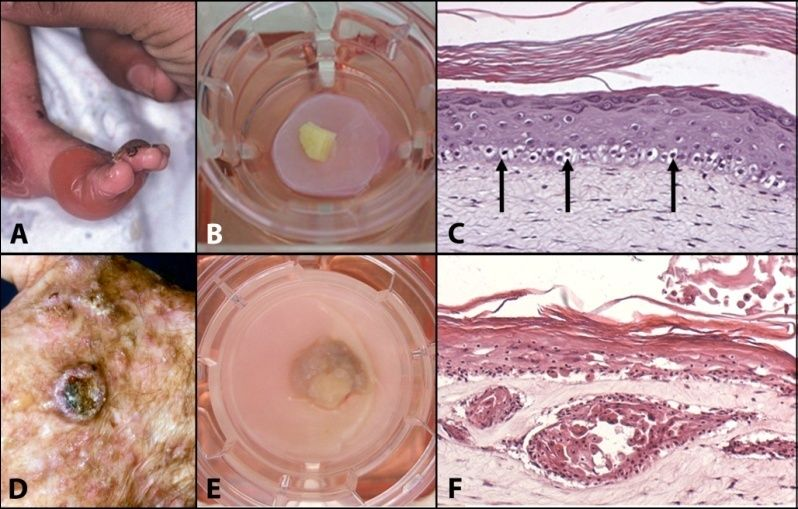 Mimicking skin diseases in-vitro: (A) Clinical manifestation of Recessive Epidermolysis Bullosa Simplex (Blister disease); (B) REBS biopsy cultured onto the skin model; (C) Cross section of a skin model in which REBS has been mimicked; (D) Clinical manifestation of a squamous cell carcinoma; (E) SCC cultured onto the skin model; Cross section of a skin model mimicking SCC.